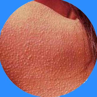 keratosis